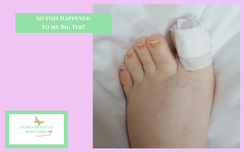 Living Creatively with Fibro | So this happened to my toe